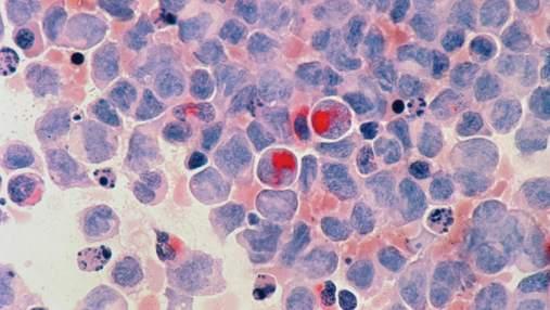 Нашли простой способ замедлить рост раковых клеток